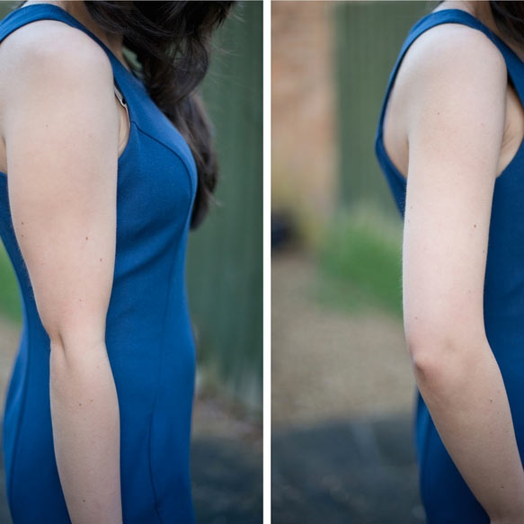 El brazo delgado