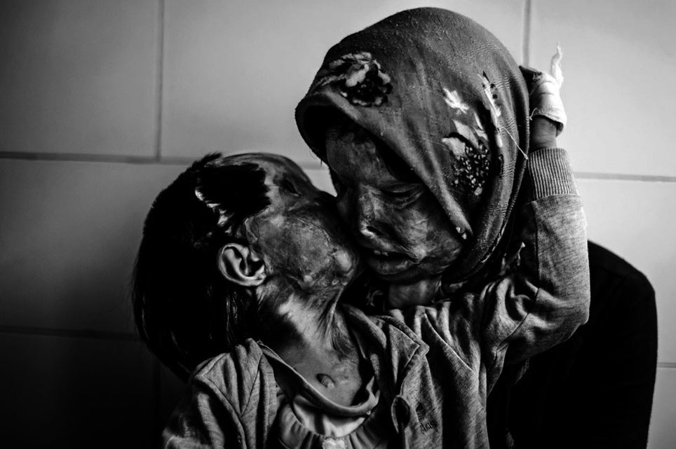 fotos-belleza-horror-vida-humana-11