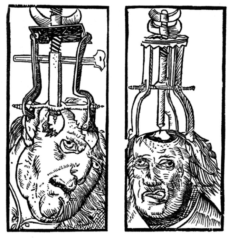 Los Procedimientos Médicos Más Dolorosos De La Época Medieval