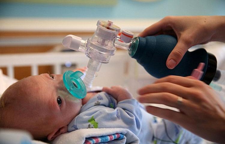 Conozca al adorable bebé que nació sin nariz y que es toda una sensación en Internet
