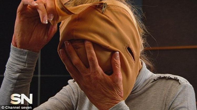 Una maniaca le prendió fuego. 2 años después se quita la máscara y muestra su NUEVO ROSTRO
