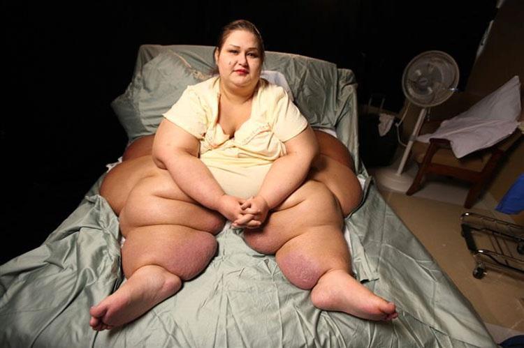 Esta mujer pesaba más de 450 kilos, ¡pero si la ves ahora NO LO CREERÁS!