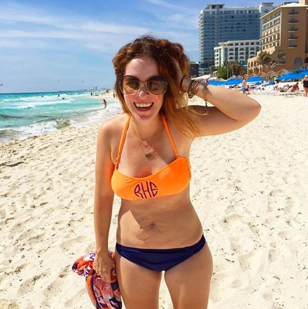 La foto de esta mujer con el vientre flácido ha creado mucha controversia y se ha hecho VIRAL. Sepá por qué
