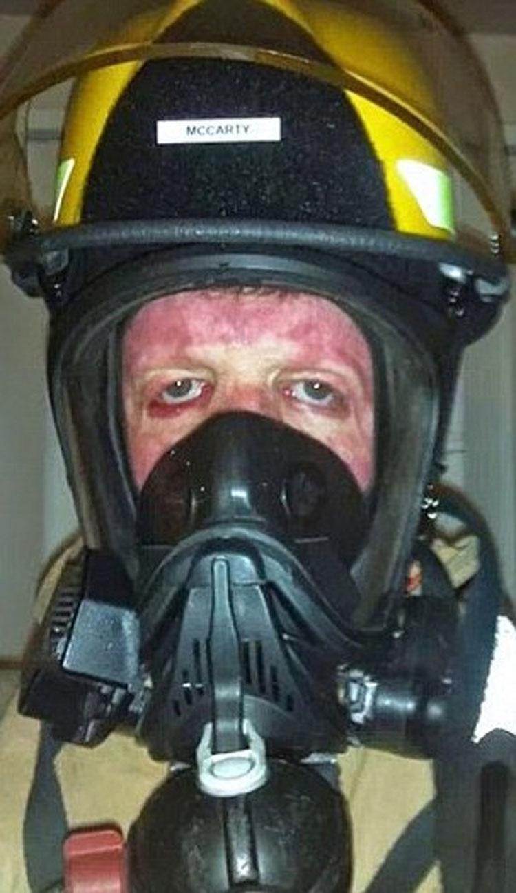 Un incendio devoró el 70% de su cuerpo cuando sólo tenía 6 años, pero mira lo que hace ahora...