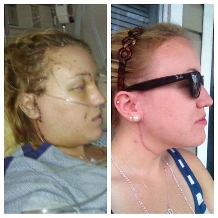Un maníaco la apuñaló 32 veces. 3 años más tarde, el hombre que le salvó la vida hace esto