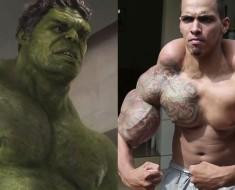 """El """"Hulk"""" de la vida real casi forzado a tener que AMPUTARLE los brazos"""