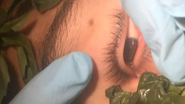 IMPACTANTE vídeo que muestra el gusano vivo de 3cm que tenía un adolescente en su ojo, llevaba ahí un mes