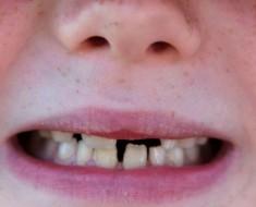 No podía CREER lo que oía cuando el dentista le dice lo que causó la caries dental de su hijo