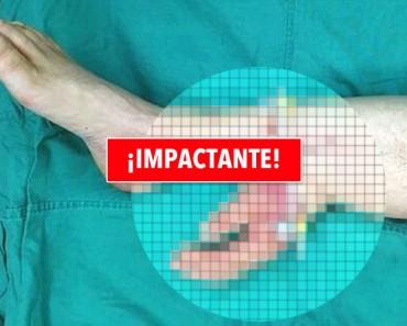 Mano cortada de un hombre es injertada en la pierna durante un mes antes de que se la coloquen de nuevo