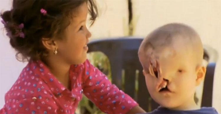 Este niño se sometió a 18 horas de cirugía para tener una segunda oportunidad en la vida. Debes verlo cómo es ahora...