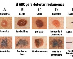 grafico-melanoma-5