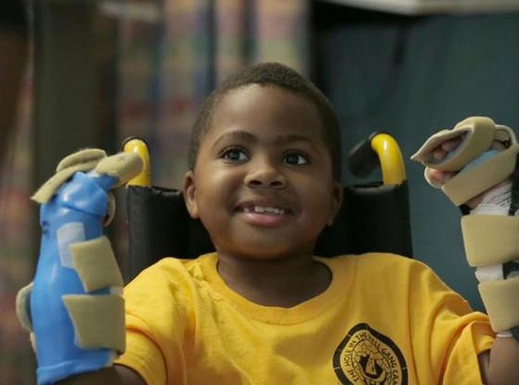 Este niño de 8 años se ha convertido en la persona más joven en someterse con éxito a esta cirugía que cambia la vida