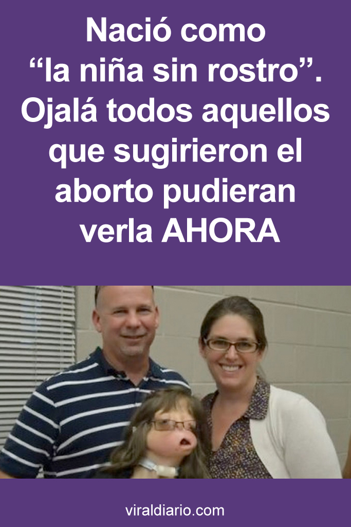 """Nació como """"la niña sin rostro"""". Ojalá todos aquellos que sugirieron el aborto pudieran verla AHORA"""