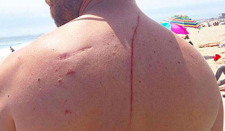 Este hombre tuvo que ir al hospital tras el ataque de un tiburón y descubrieron algo que le salvó la vida