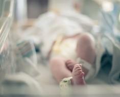 Este bebé con defectos extremadamente raros ha nacido con un solo ojo en medio de la frente