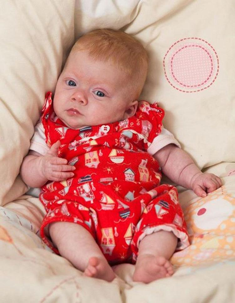 Para mantener caliente a un bebé prematuro los médicos lo envolvieron en la cosa más pequeña que tenían a mano