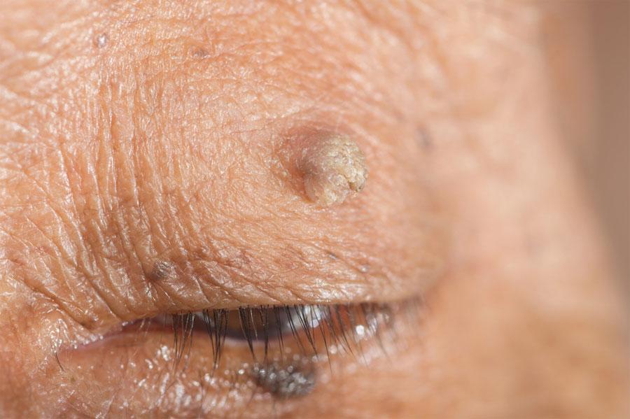 Verrugas de la piel: qué son y cómo deshacerse de ellas