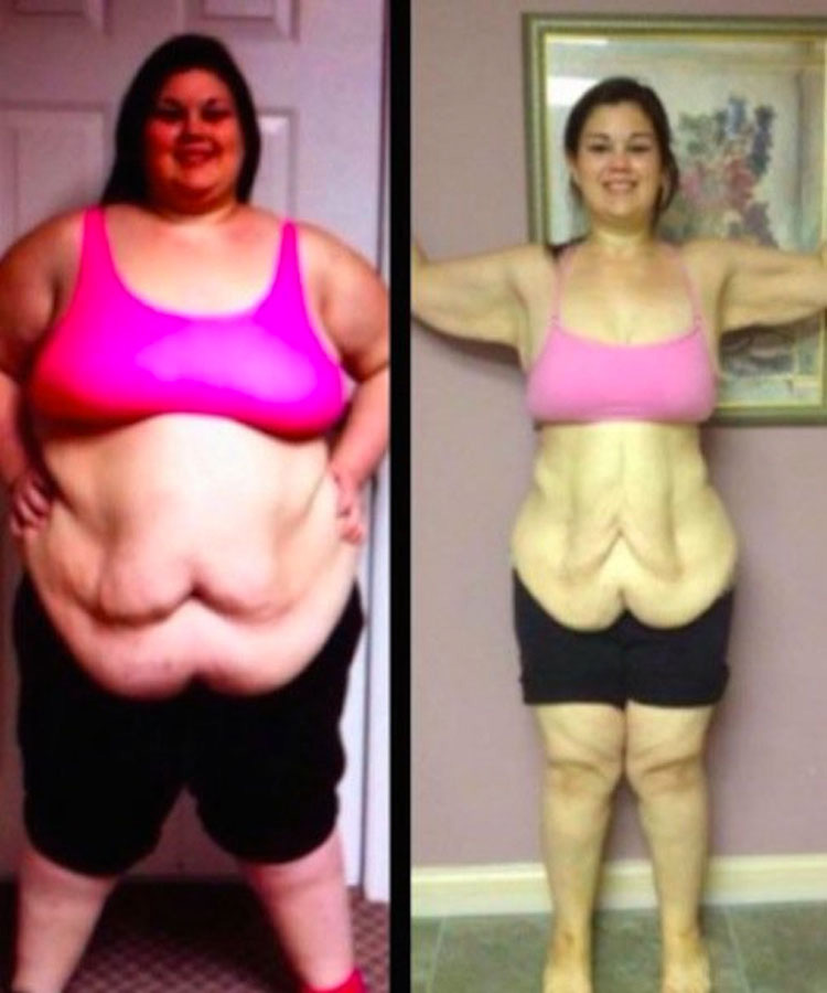 Bajó la mitad de su peso en 15 meses. Ahora ella se ve fabulosa...