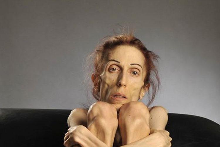 Esta actriz con ANOREXIA hace una asombrosa transformación después de casi morir...