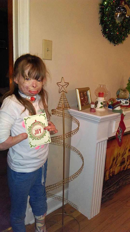 Un maníaco prendió fuego a la casa de esta niña de 5 años. Lo que pide esta Navidad es desgarrador...