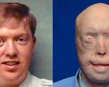 Cumpliendo con su deber la máscara de este bombero se fundió con su cara. Ahora experimenta una transformación impresionante