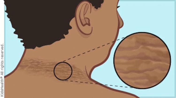Esta mujer notó un anillo oscuro alrededor de su cuello, pero no esperaba que los médicos le dijeran esto...