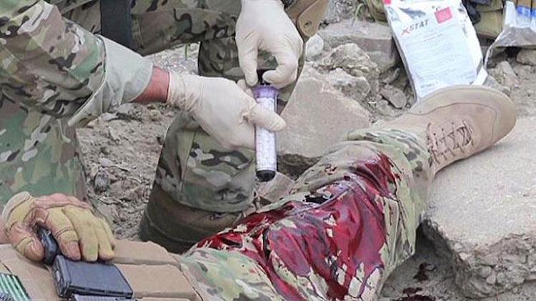 Uno de los mejores inventos: esta jeringa hace que las heridas de bala se cubran en segundos