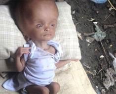 Encuentra a un bebé abandonado entre basura con una afección letal. 2 años más tarde, estoy sin palabras