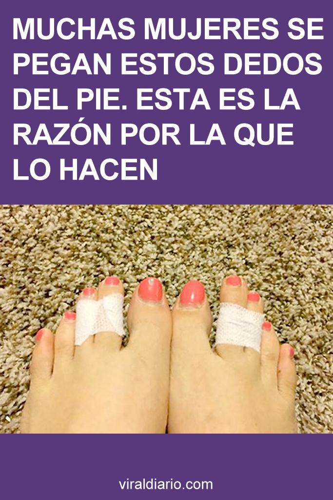 Muchas mujeres se pegan estos dedos del pie. Esta es la razón por la que lo hacen