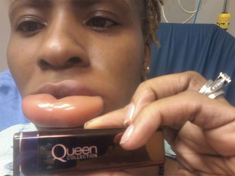Podría haber muerto: así se le puso el labio tras una reacción alérgica a una barra de labios