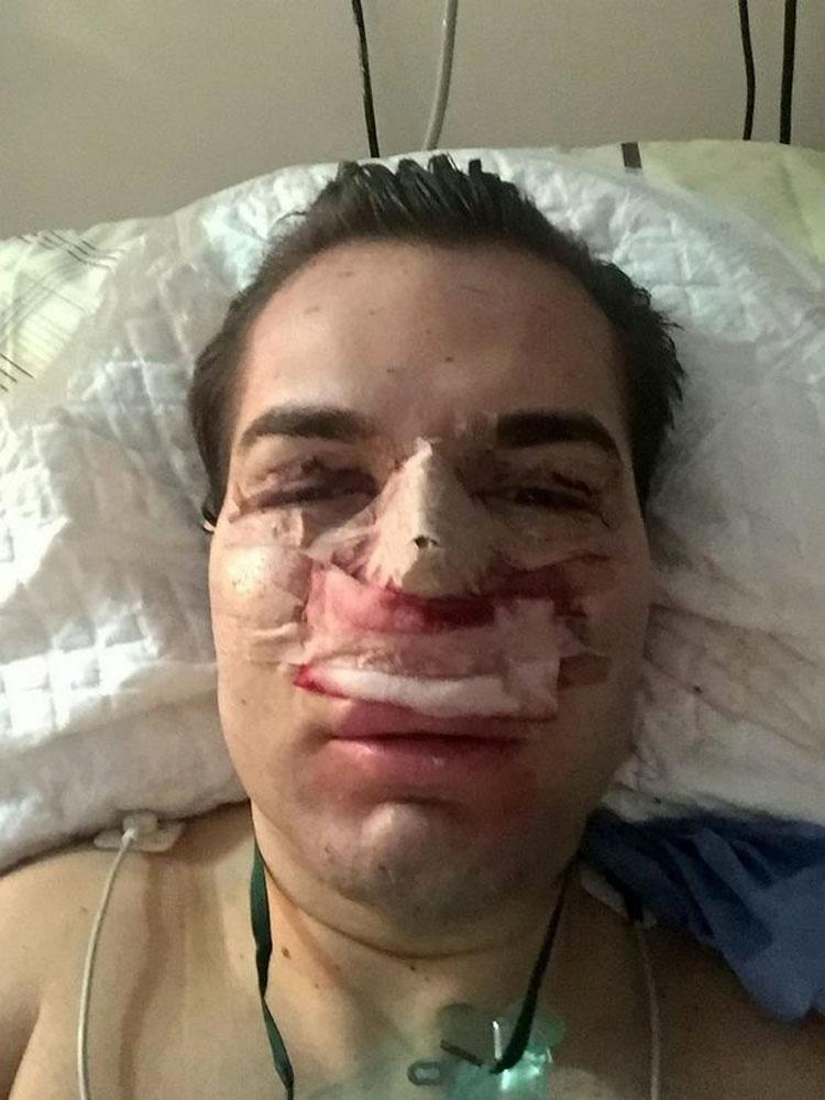 """El """"muñeco Ken humano"""" trasladado a un hospital porque una infección le devora su nariz"""