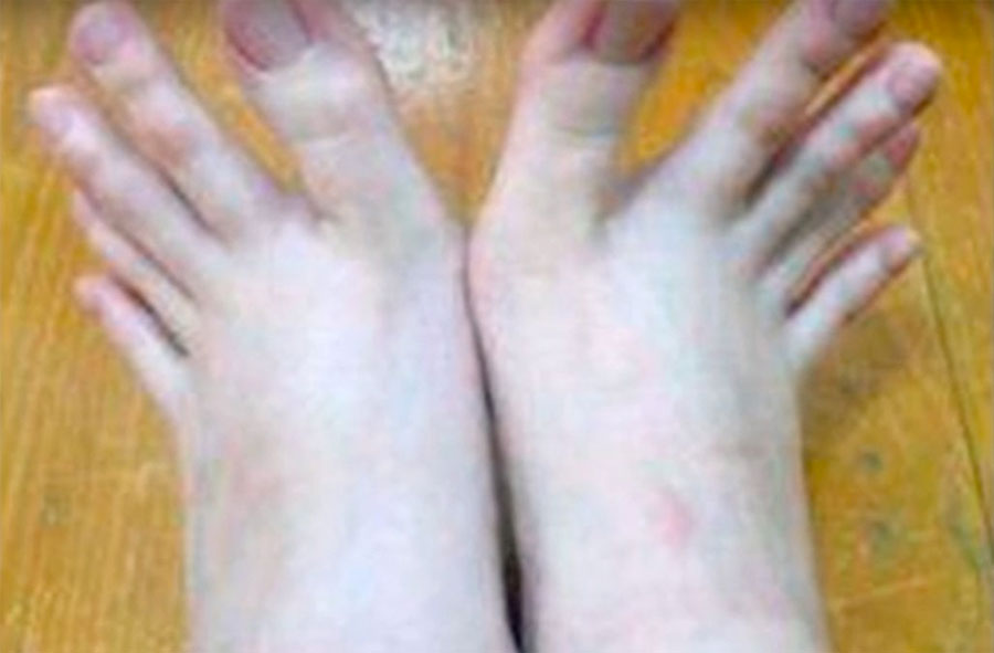 Esta mujer tiene los dedos de los pies como los de las manos (y Internet se asombra)