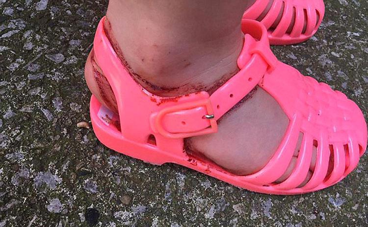Compraron a su niña unas sandalias. Al quitárselas 30 minutos más tarde ven ESTO