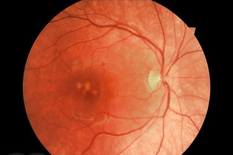 CUIDADO: Su hijo perdió el 75% de su vista debido a este pequeño juguete