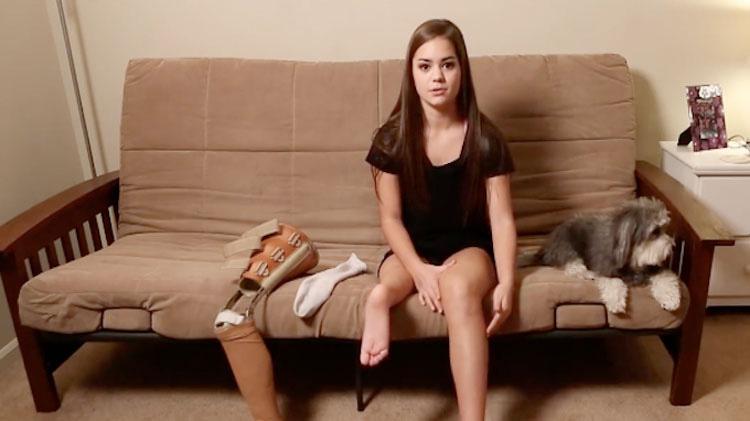 Esta chica pensó que nunca volvería a bailar. Los médicos hicieron esto a su pierna derecha...
