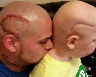 Padre e hijo tendrán siempre esto en común después de una terrible tragedia 3