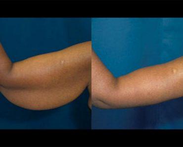 5 Ejercicios fáciles para deshacerse de la flacidez de los brazos rápidamente