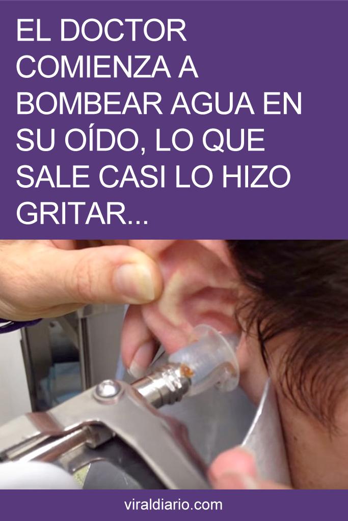 El doctor comienza a bombear agua en su oído, lo que sale casi lo hizo gritar. AVISO: Impactante