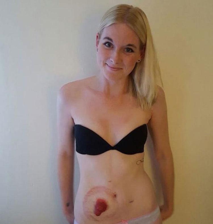 Esta mujer con bolsa de colostomía es humillada en la piscina tras ser acusada de asustar a los niños