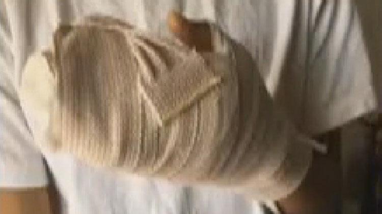 Su hijo se cortó en un dedo, al día siguiente sabía que no era sólo un corte después de ver su mano