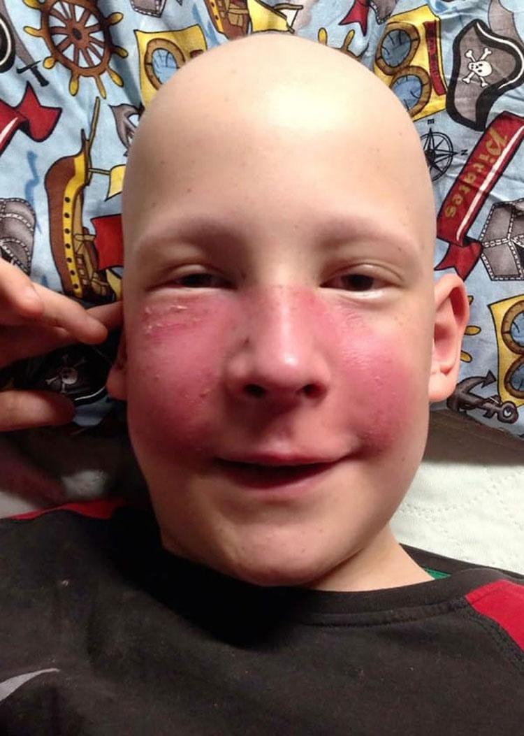 Un mosquito hizo que tuviera este aspecto, pero los médicos se dan cuenta de que NO ERA una alergia