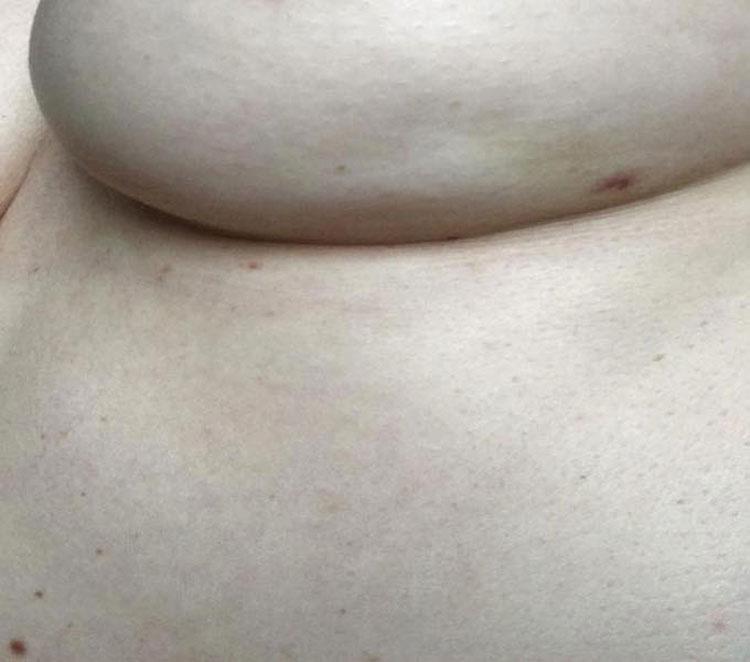 Esta importante imagen comparte un síntoma de cáncer de mama que debes conocer