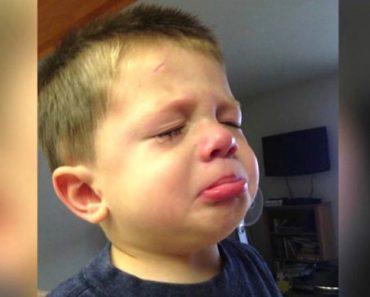 """La visión de este niño fue dañada para toda la vida después de usar este champú """"sin lágrimas"""" 1"""