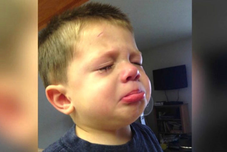 """La visión de este niño fue dañada para toda la vida después de usar este champú """"sin lágrimas"""""""