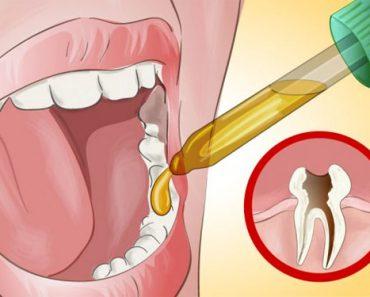 Mi dentista se sorprendió cuando le dije cómo puedo aliviar mi dolor de muelas por mí mismo