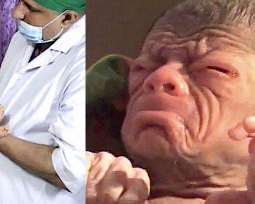 Cuando este niño nació los médicos dijeron a su madre que nunca habían visto algo así