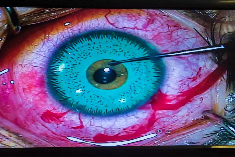 Esta modelo se ha hecho su operación de cirugía estética número 19. Mira lo que se ha hecho