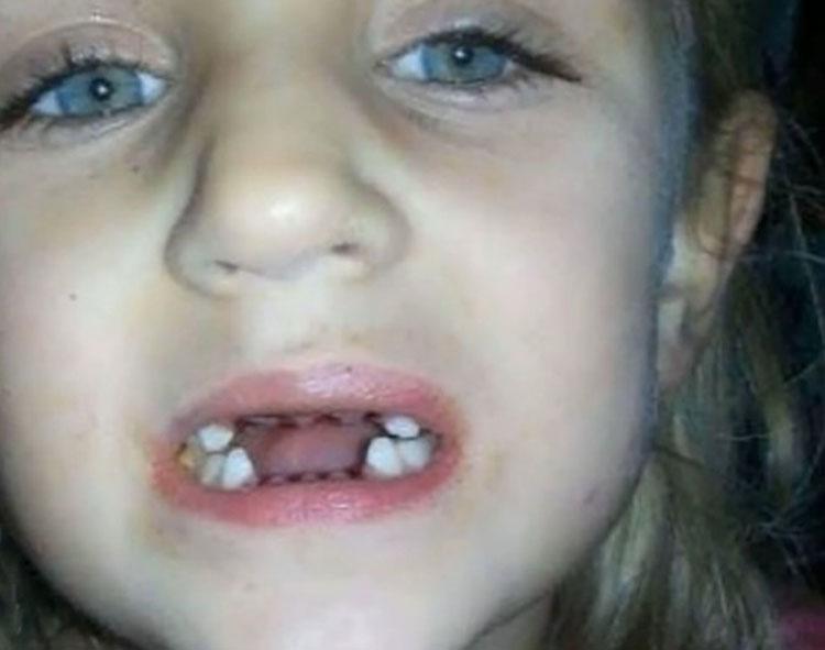 Una madre sorprende al dentista haciendo algo perturbador a su hijo - y no era la primera vez