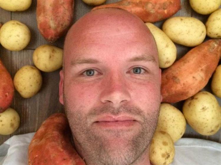 Sólo comía patatas todos los días durante un año. Este es su aspecto en la actualidad