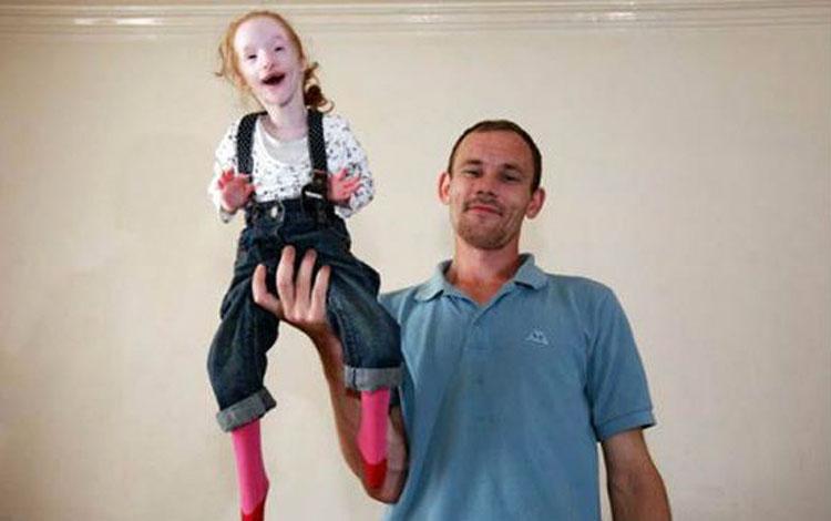 """La gente siempre le pregunta sobre la """"muñeca"""" que lleva, su respuesta los deja silenciosos"""